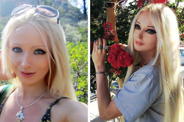 Ожившая кукла Валерия Лукьянова до и после пластики (Фото