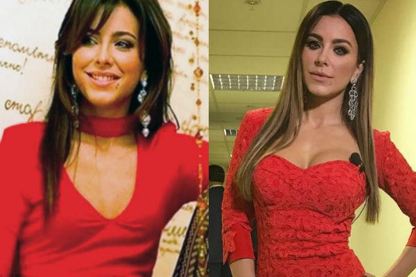 Ани Лорак в молодости, фото до и после пластики, новости