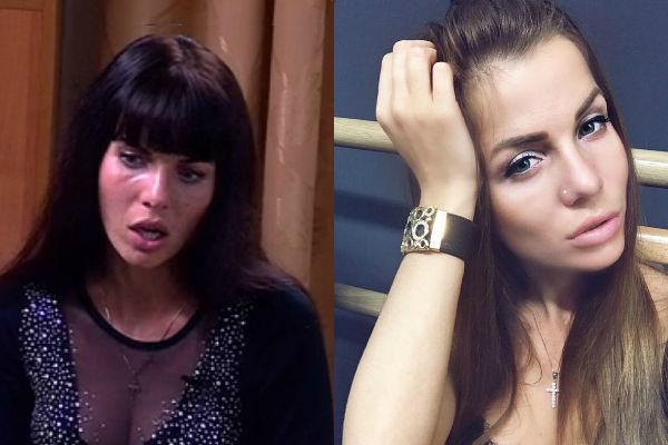 саша гозиас фото до и после ринопластики носилась традиционная