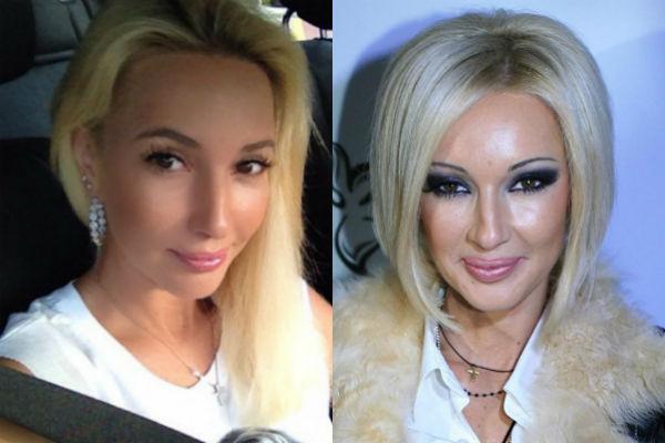 Лера Кудрявцева как изменилась внешность после пластики фото