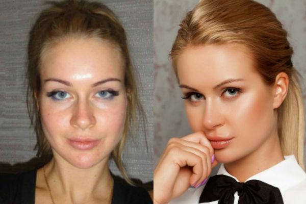 Татьяна африкантова до и после пластики фото
