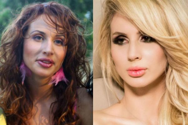 светлана лобода фото до и после пластики
