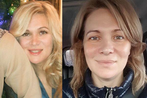 Виктория морозова до и после пластики фото