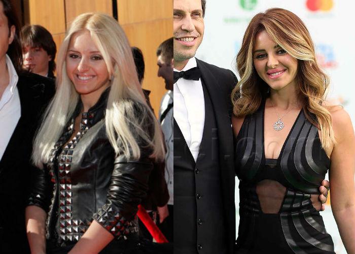 Жена известного шоумена Александра Реввы Анжелика Ревва до и после пластики скул, носа, увеличения губ фото