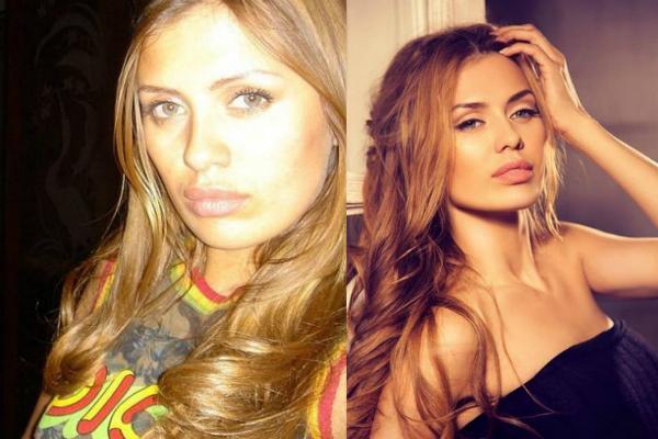 Российские знаменитости до и после пластики (23 фото ...